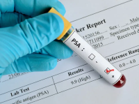 Cancer screening dropped dramatically during pandemic; it's time to catch up