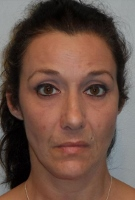 Ex-Rochester woman gets suspended sentence on heroin possession charge